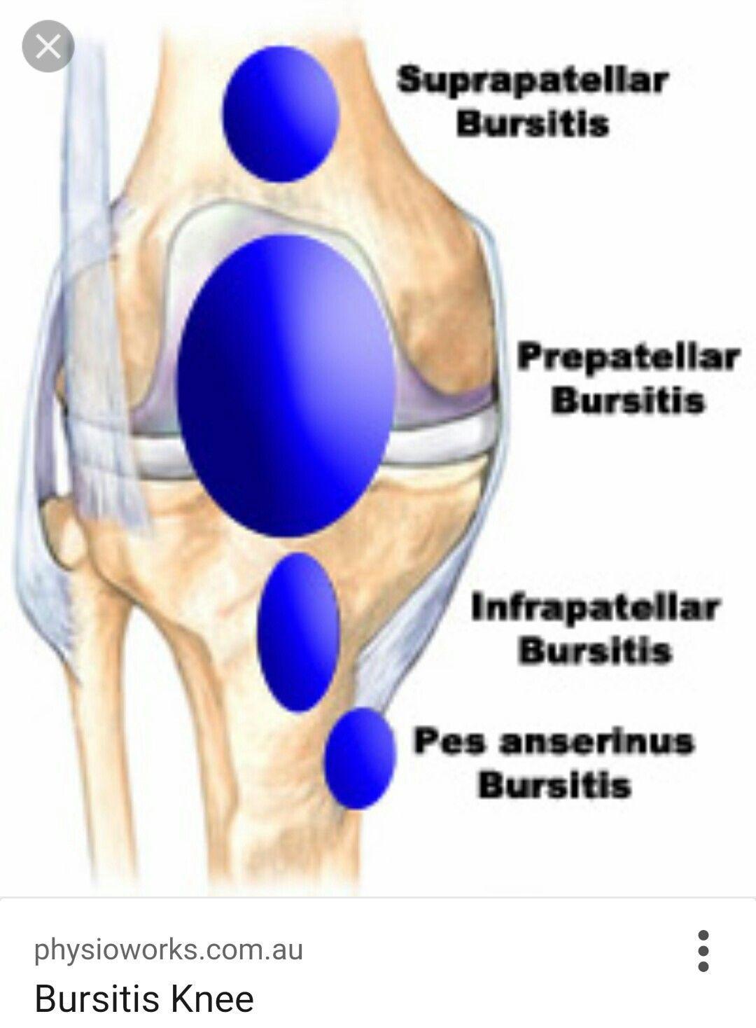 Knee bursas | MEDICAL | Pinterest | Medical