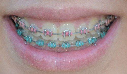 Well The Braces Aren T Fun But It S Really Neat Being Able To Pick Bright Colorful Bands Dental Braces Colors Pink Braces Cute Braces