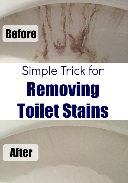 Cleaning Tip Tuesday: Removing Toilet Stains | Toilet stains ...