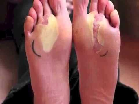 que es ampollas en los pies