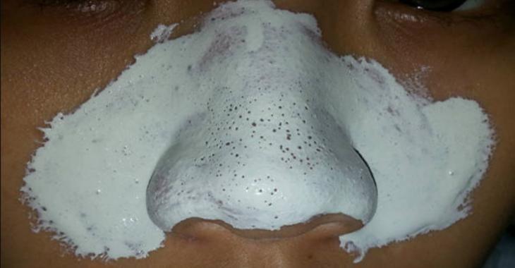 Photo of Débarrassez-vous de vos points noirs avec ce masque à 2 ingrédients sécuritaires!