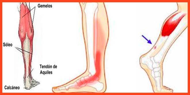 dolor talon pie y pierna