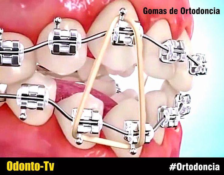 Pin On Ortodoncia