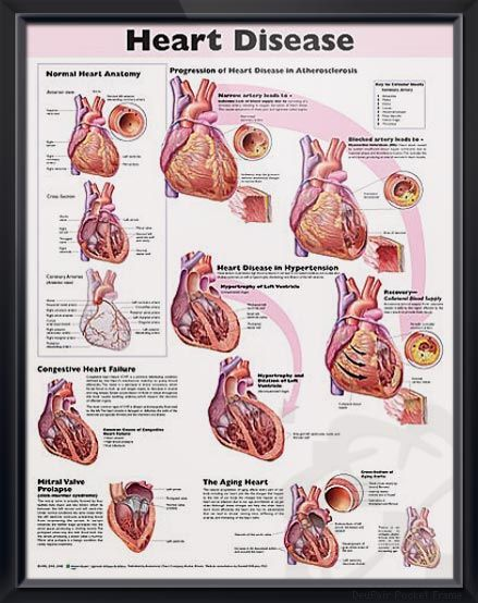 the anatomy of the heart and its diseases Webmd's heart anatomy page provides a detailed image of the heart and provides information on heart conditions, tests others suggest heart disease.