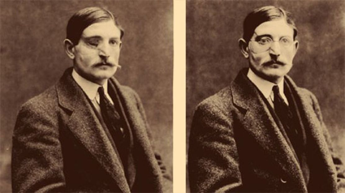 Wounded WWI soldier before and after eyewear mounted ...