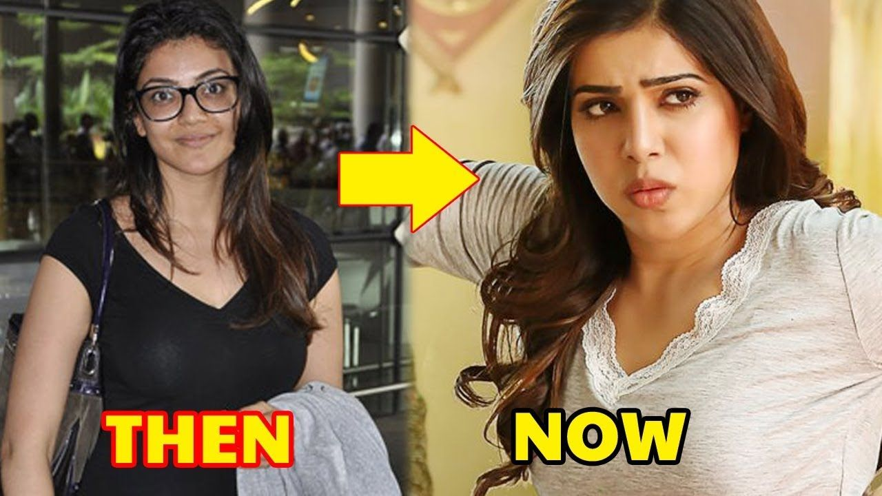 Before and after plastic surgery of south indian actresses