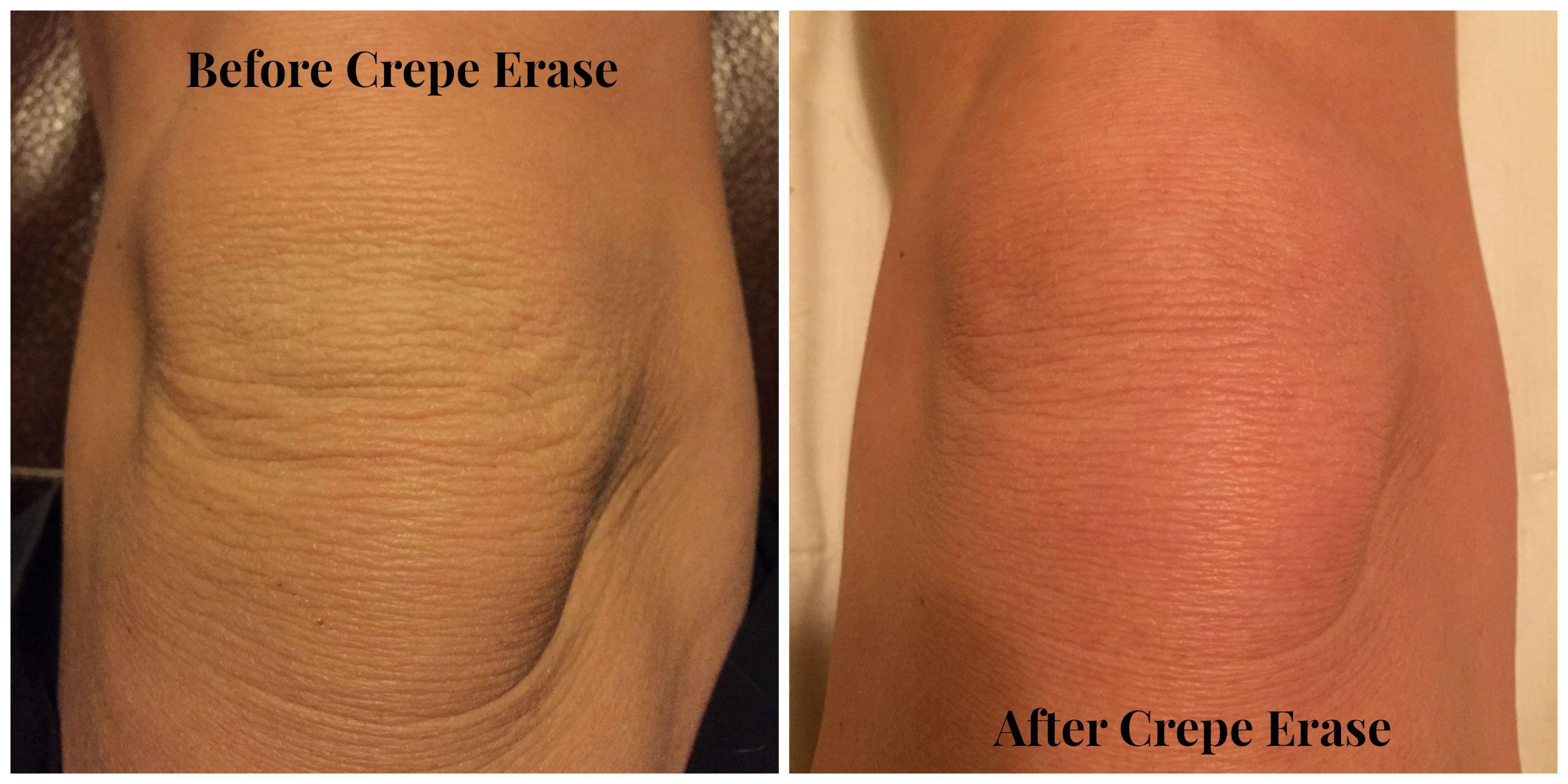 Crepe Erase Review Crepey Skin Crepey Skin Treatment Crepe Skin