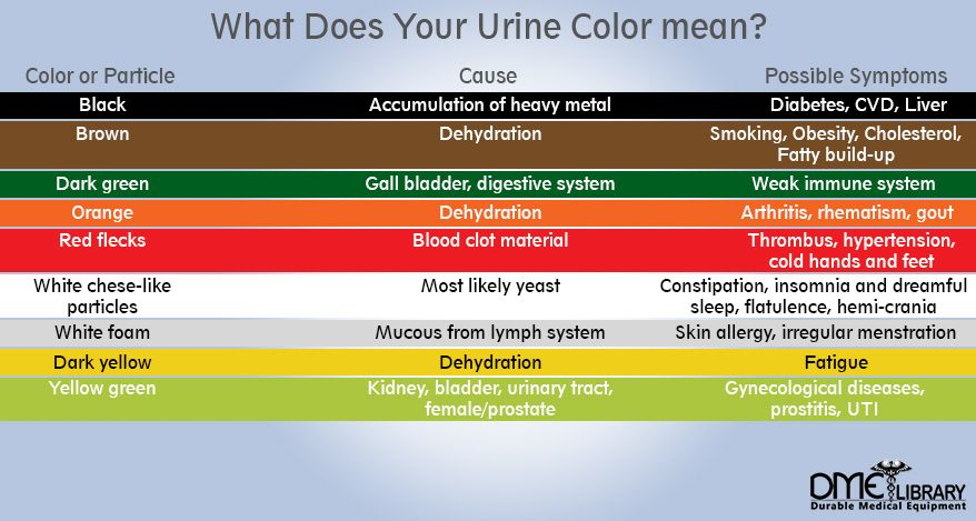 These Colors Indicate That You Are Well Hydrated But You May Want