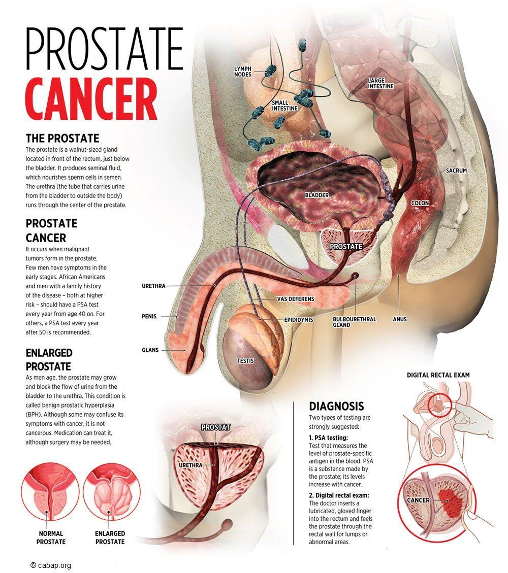 prostata cancer symptom