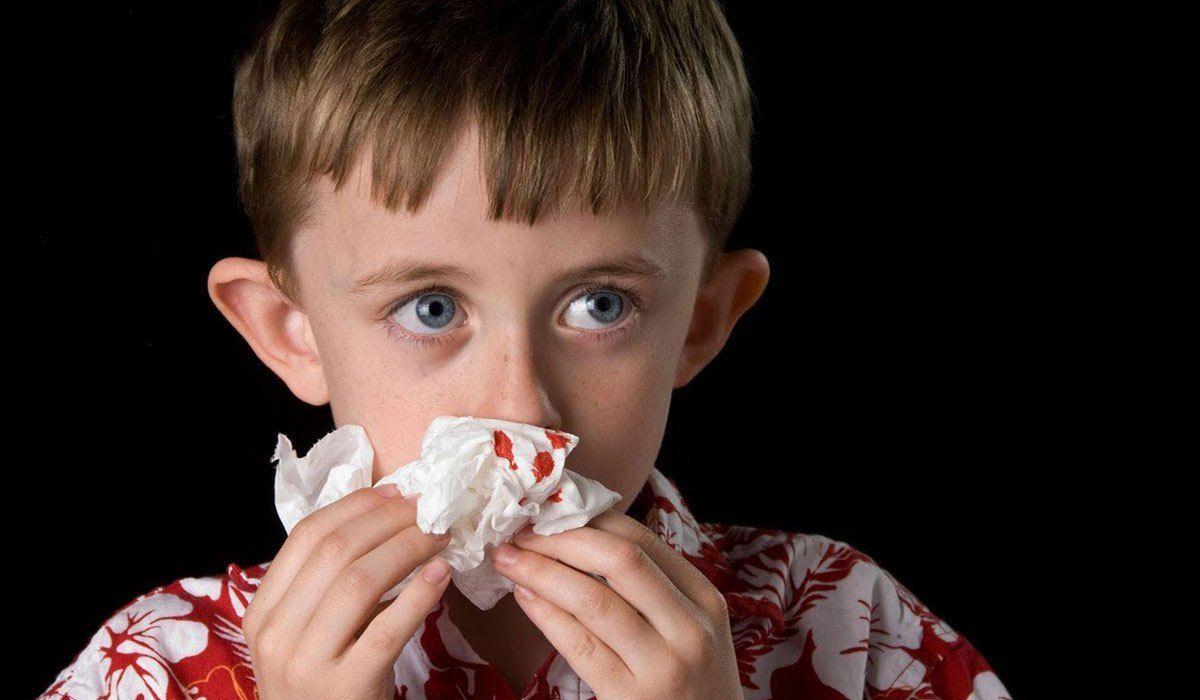 أسباب نزيف الأنف عند الأطفال Nose Bleeds Pediatrician Parts Of The Nose