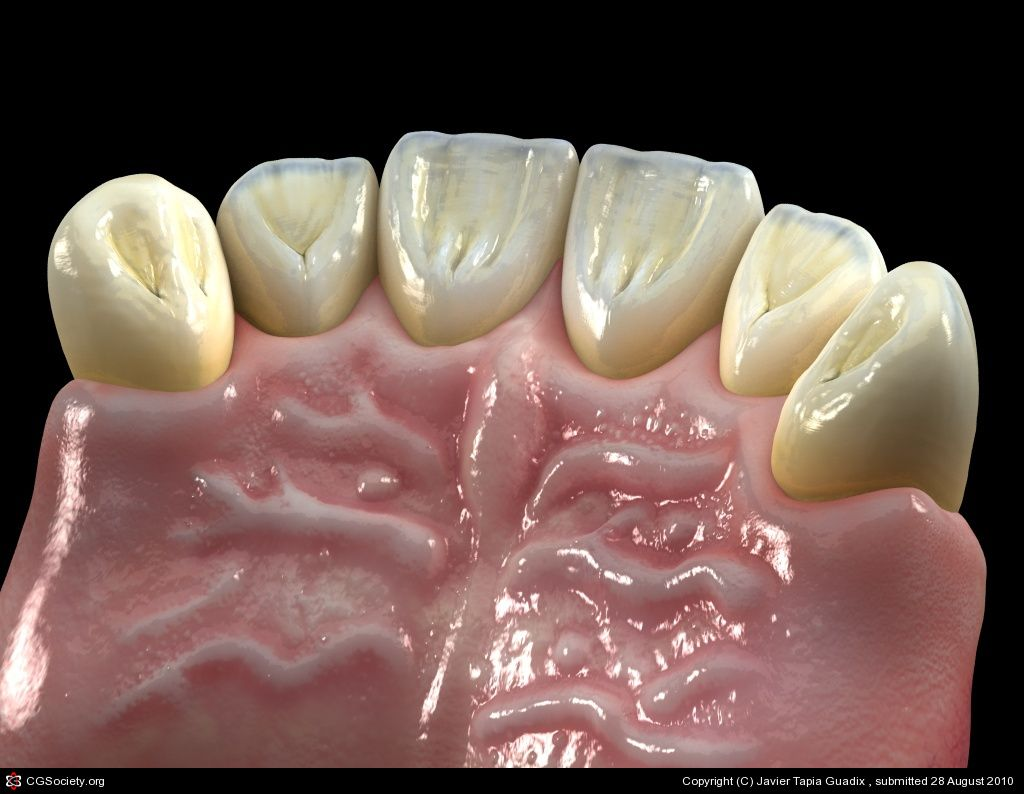 Dental Works-4 by Javier Tapia Guadix | 3D | CGSociety | Wonders of ...