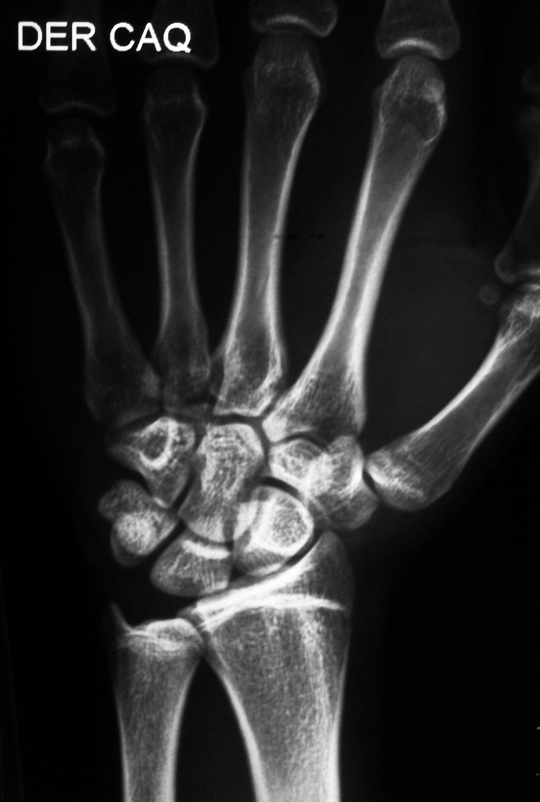 Radiografía de la muñeca, oblicua: | 2014 - Mod A - TP 3 | Pinterest ...