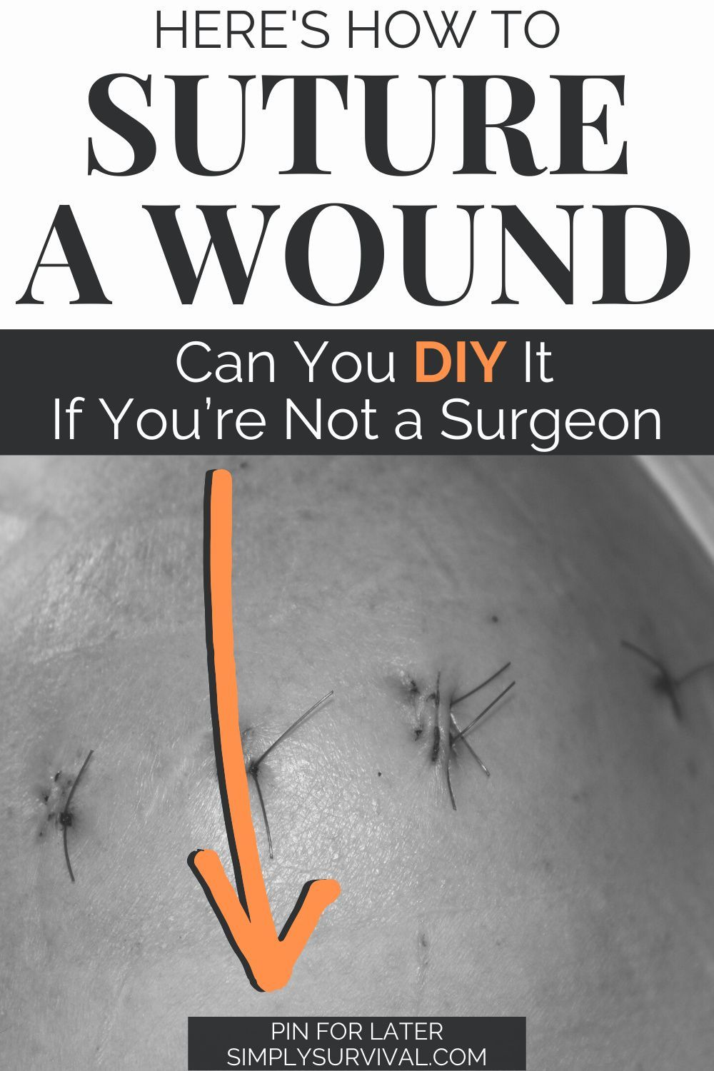 Complete Guide To Mastering Suturing Techniques Suture Techniques Survival Skills Medical Knowledge