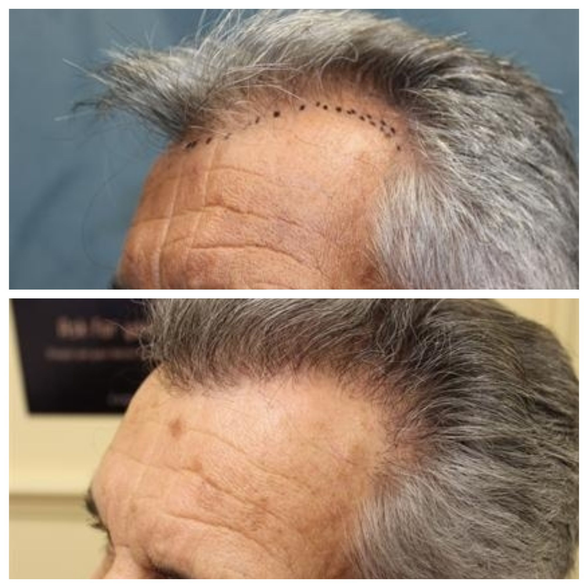 Neograft Is A Minimally Invasive Hair Transplant Technique That Can Achieve A Fuller Thicker Hairline Hair Restoration Hair Transplant Healthy Hair Follicles