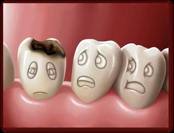 Ce este caria dentara? Care sunt tipurile de carii dentare? Care sunt  cauzele cariei dentare? Care sunt simptomel…   Tooth infection, Heal  cavities, Dental cavities