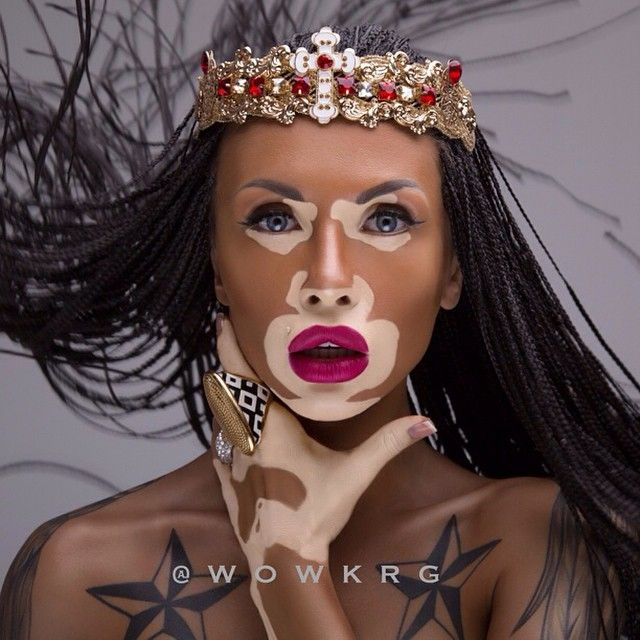 Winnie Harlow A Model That Was Born With Vitiligo A Condition That Causes White Spots To Appear On Her S Vitiligo Model Winnie Harlow African American Beauty