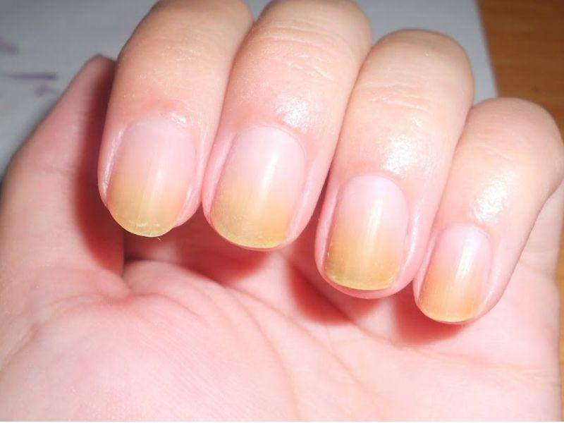 7 ways to get rid of yellow nails at home yellow toe