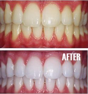 Resultado de imagen para dientes blancos con bicarbonato