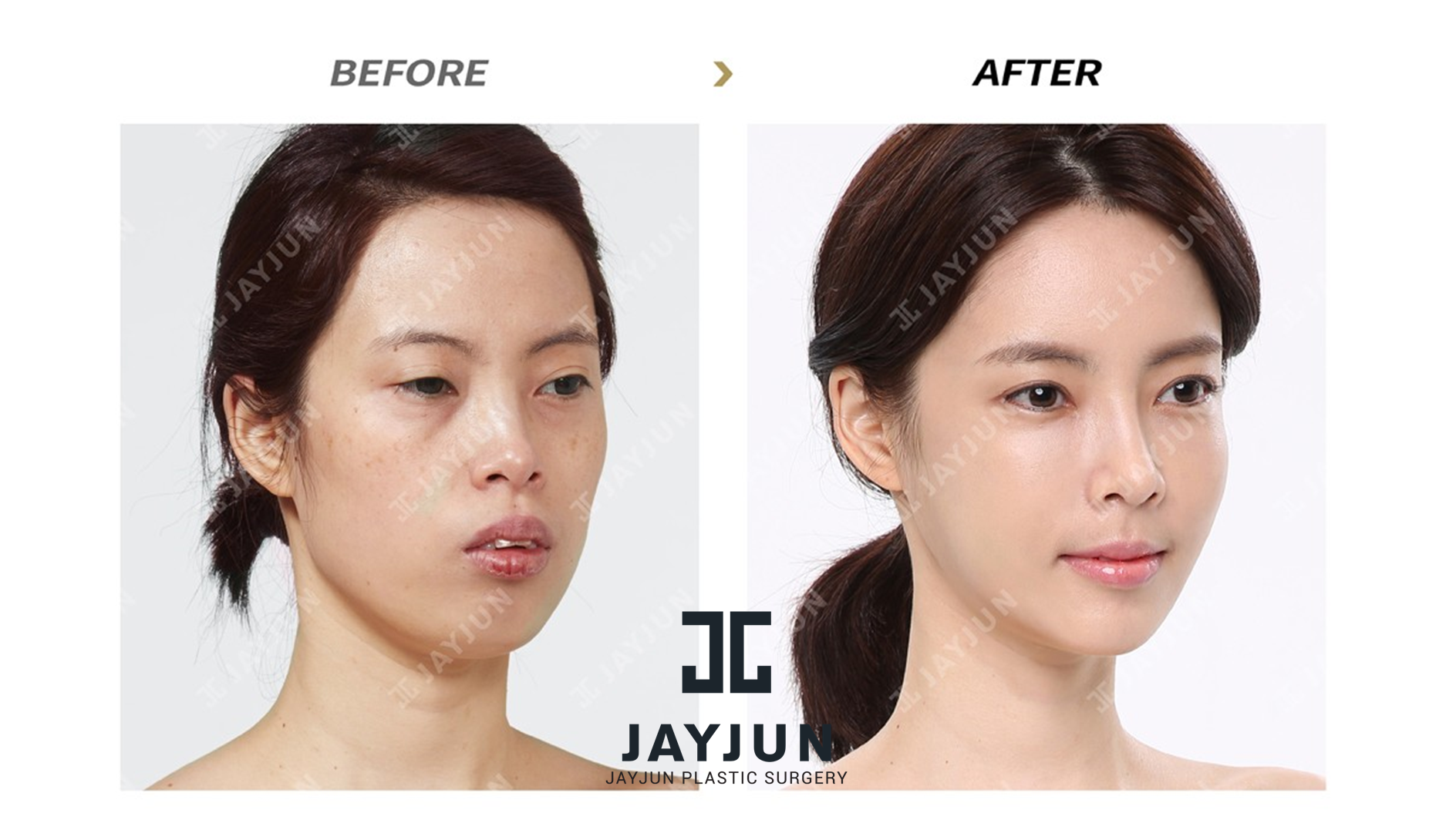 You are no doubt aware of the enormous popularity of cosmetic surgery in south korea while public opinion on the procedures is still split we d