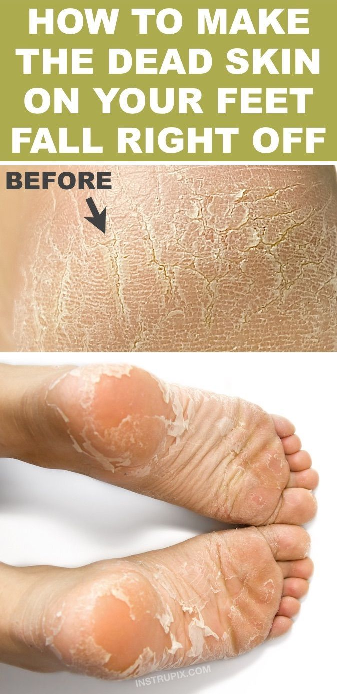 How To Get Rid Of Dry Heels - FAST! - New Ideas in 2020   Dead skin on feet, Beauty hacks that ...