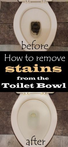 How To Remove Stains From The Toilet Bowl Toilet Cleaning Clean