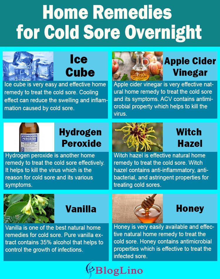 15 Best Natural Home Remedies For Cold Sore Overnight