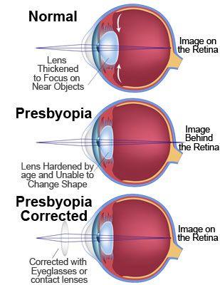 Eye Presbyopia Corrected Cbse Class 10 Physics Pinterest