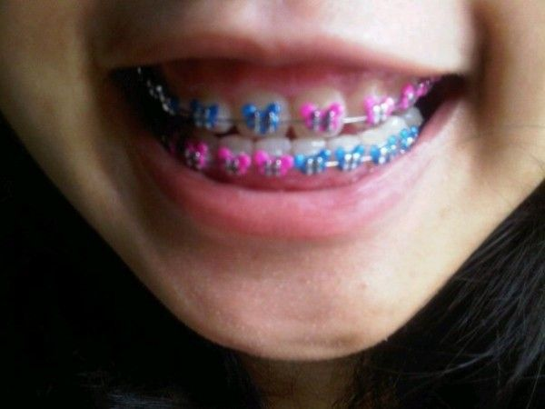 Cool Braces Color Combos Braces Faces Are Desirable Brases I Like