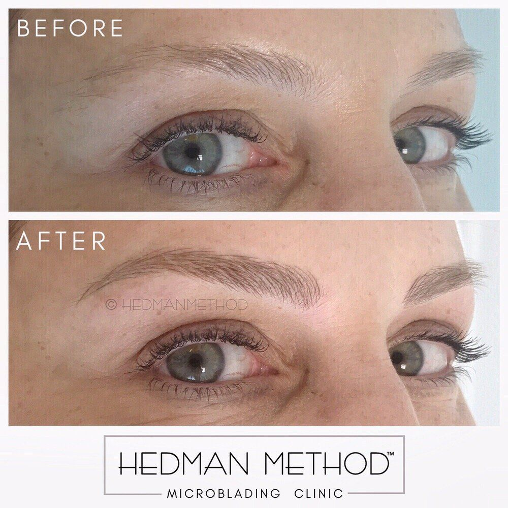 Photo Of Hedman Method Microblading Clinic Very Soft And Natural Looking Blonde Eye Microblading Eyebrows Microblading Eyebrows Blonde Mircoblading Eyebrows