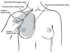 Vesta williams weight loss surgery image 2