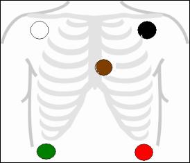 Proper placement for 5 lead EKG | Nursing | Pinterest | Graph paper