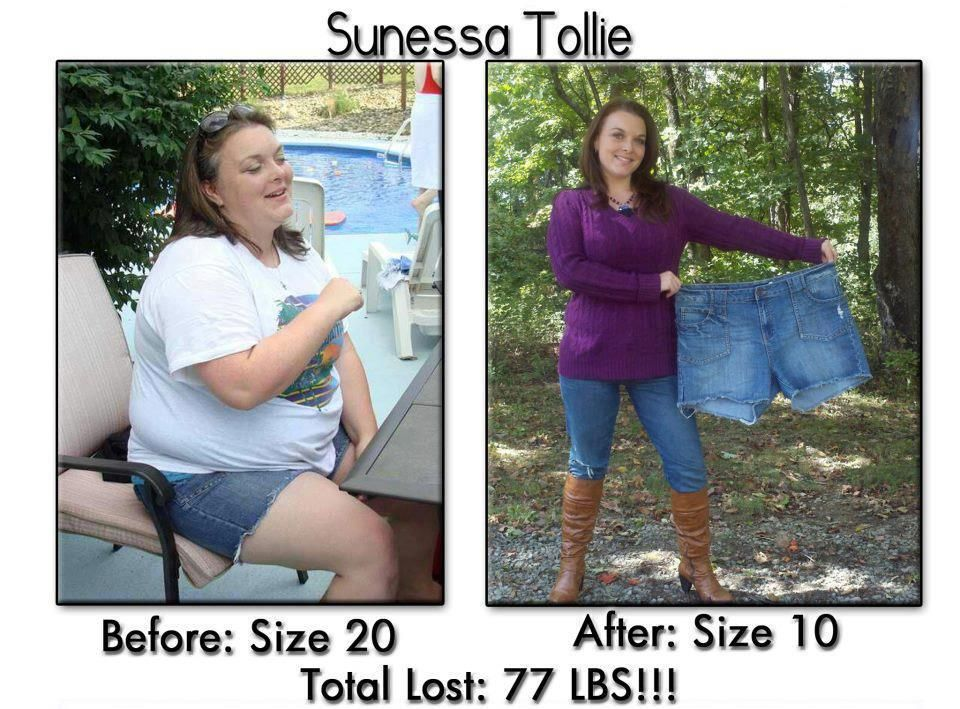 Losing Weight After Weight Loss Surgery