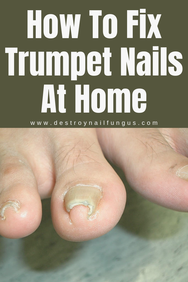 How To Fix Toenails That Curve : toenails, curve, Everything, About, Pincer, Toenails, #fungus, #nail, #nails, Toenail, #toenailfungus, Remedies,, Curved, Toenails,, Nails
