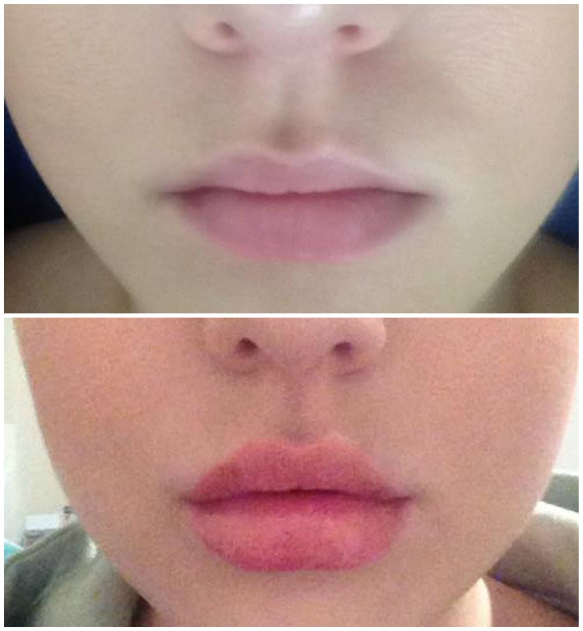 Shell, is looking amazing after receiving lip injections