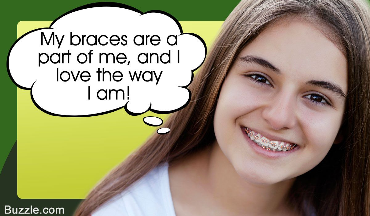 Looking Good With Braces Self Confidence How To Look Better Braces Perfect Smile