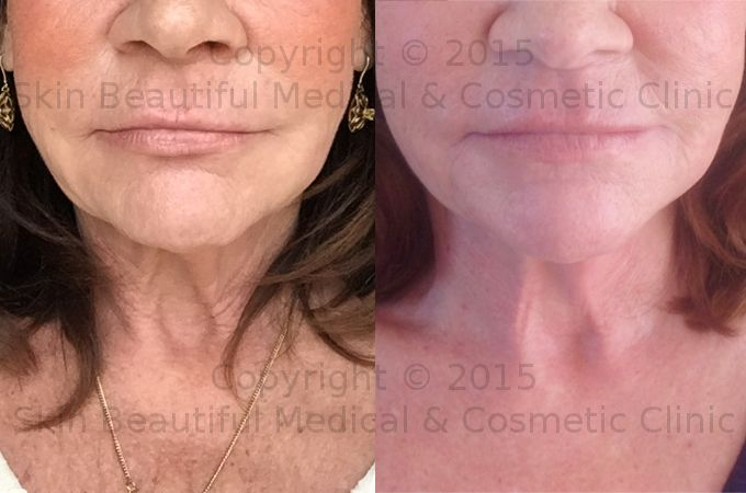 PDO thread neck lift by Helen Bowes - before and after image