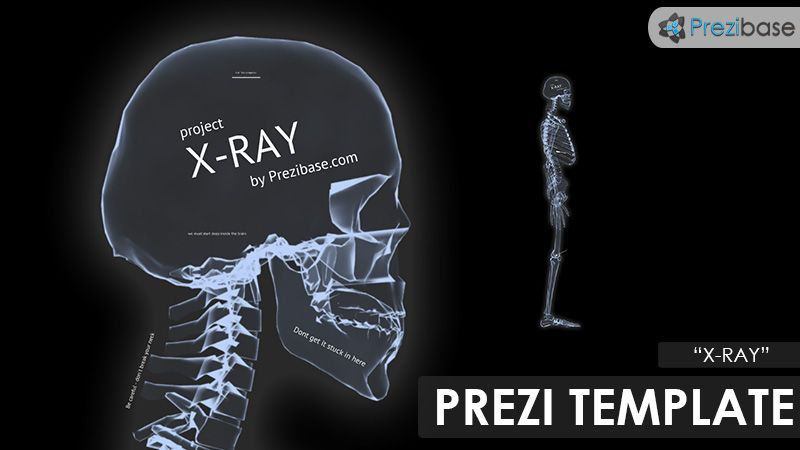 health template prezi  x-ray-medical-health-prezi-template.jpg (800×450) | The Body | Pinterest