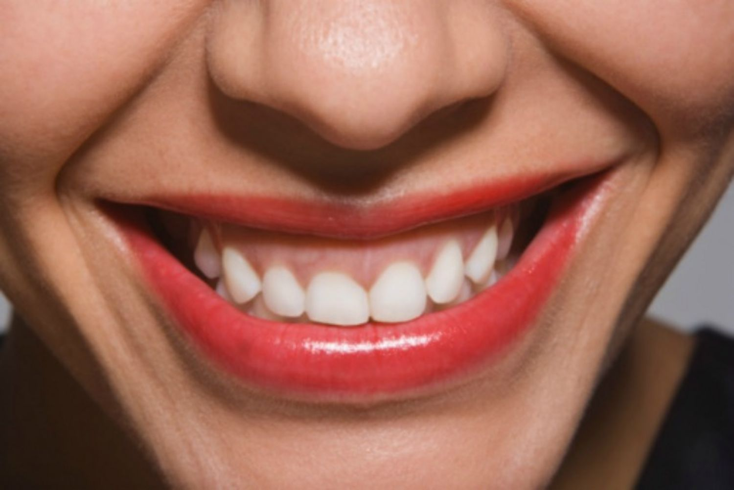 Extra Incentive to Brush: A Pretty Smile Also Benefits Your Health! From GLAMOUR magazine, courtesy O'fallon MO dentist, monticellodental.com