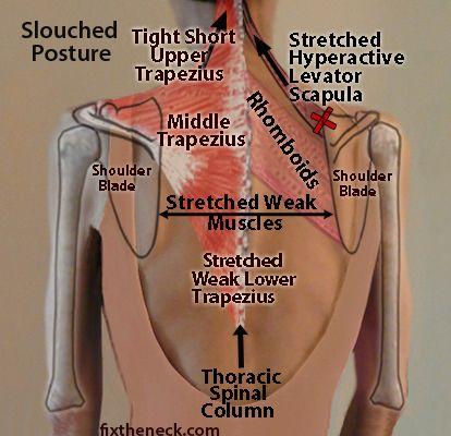 How Destabilized Shoulder Blades Cause Neck And Upper Back