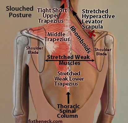 How Destabilized Shoulder Blades Cause Neck And Upper Back Pain