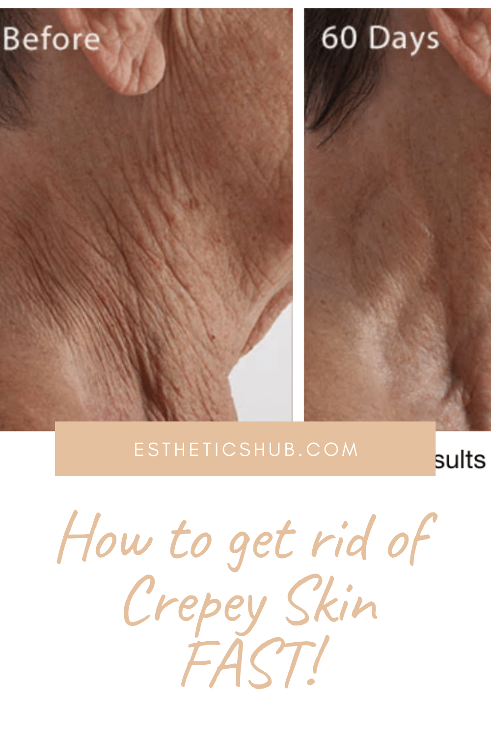 Crepe Erase Review 2020 Do Not Buy Before Reading This Review Skin Care Young Beautiful Skin Care Tips