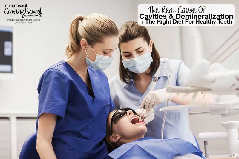 Die wahre Ursache für Karies & Demineralisation + Die richtige Ernährung für gesunde Zähne   – Natural Health
