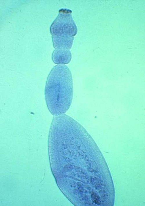 ciclul vieții bolii pinworms tablete din paraziți umani