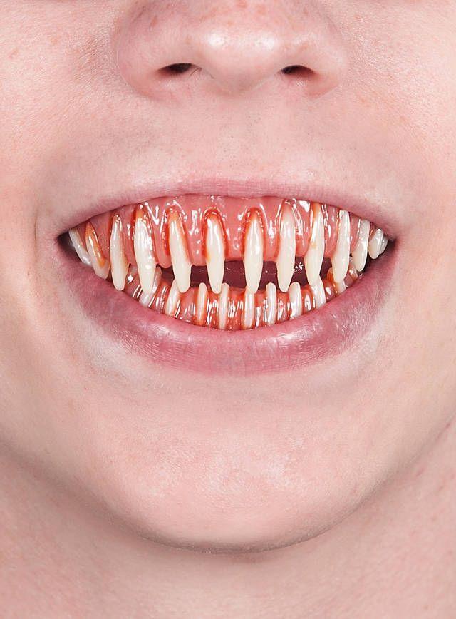 том, где фото зубы во весь рот счёт грунтовых поверхностных