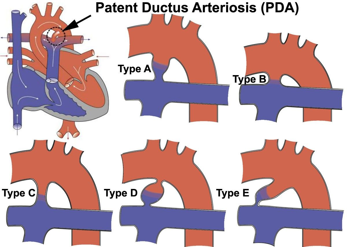 thesis on patent ductus arteriosus Nursing theses by an authorized administrator of sophia  patent ductus  arteriosus (pda) is just one complication that often presents with prematurity and.
