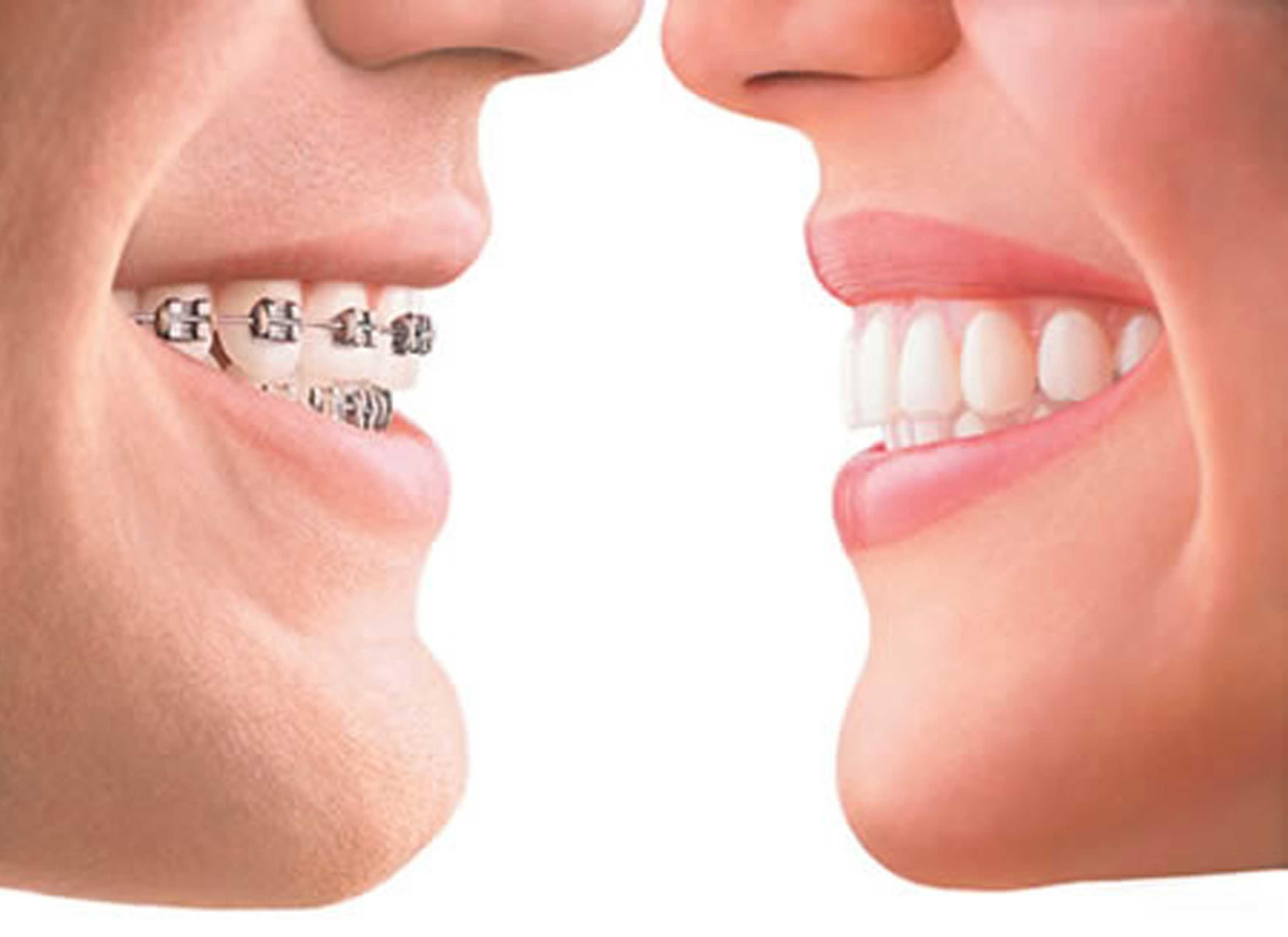 Aparelho Ortodontico Sorrisos Pinterest Zahnersatz Zahne E Jungs