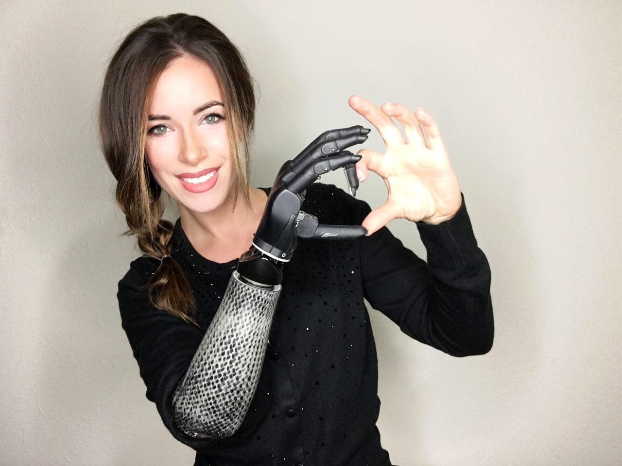 The Bionic Model: Model with prosthetic arm takes runway