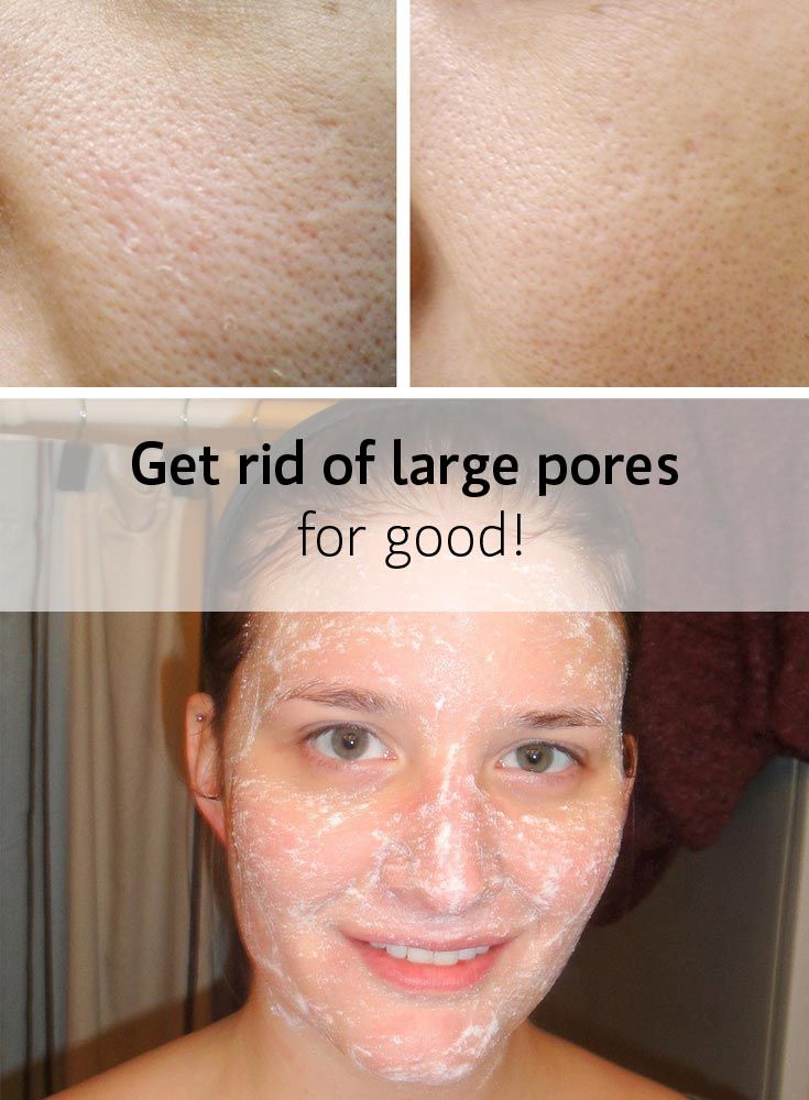 Blocked facial pores issues