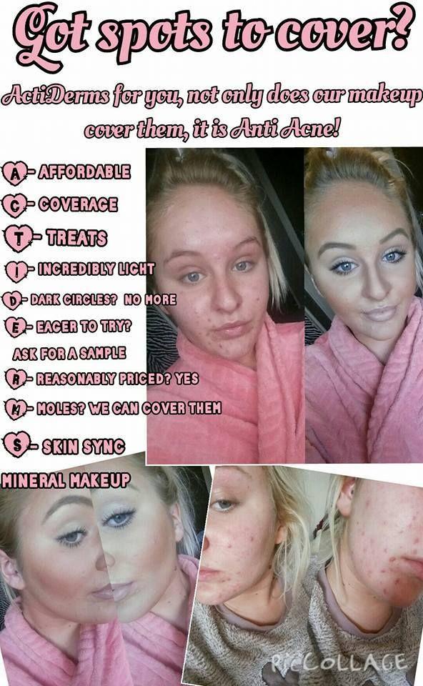 ActiDerm Back acne treatment, Chest acne, Diy acne treatment