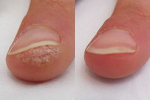 Wart Remover In 7 Days With Wartrol Wart Removers Warts How To